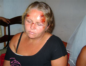 mulher machucada