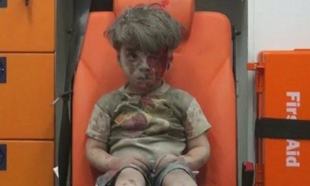 menino-sirio-ferido