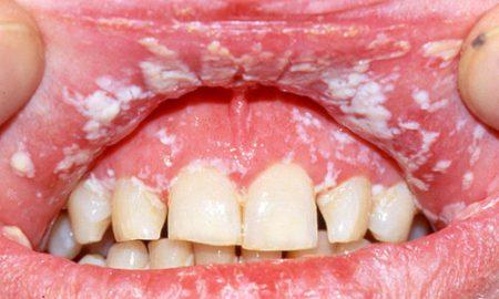 candidiase-oral-2